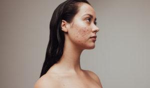 Allantoin skincare ingredient numelab switzerland woman