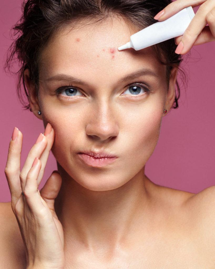 acne prone skin woman numelab
