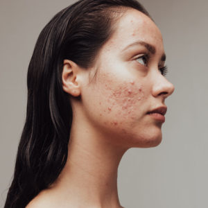 acne woman face numelab skincare