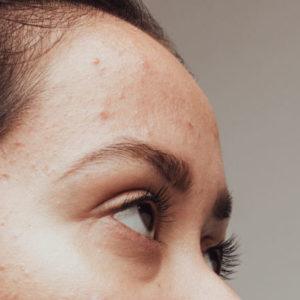 acne purging numelab skincare