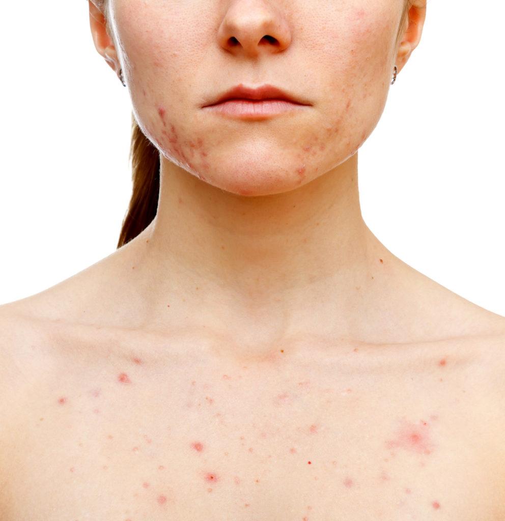 adult acne skin numelab switzerland woman
