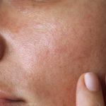 oily skin numelab switzerland skincare