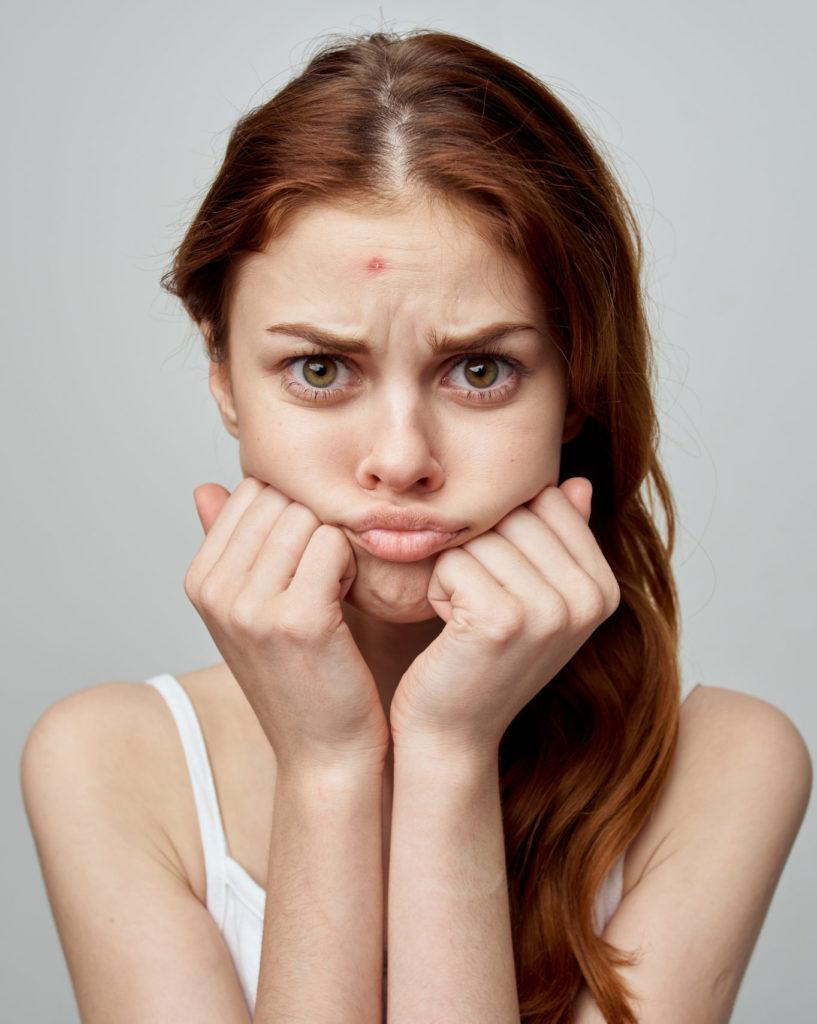 oily skin woman numelab switzerland
